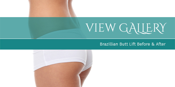 Brazillian-Buttlift