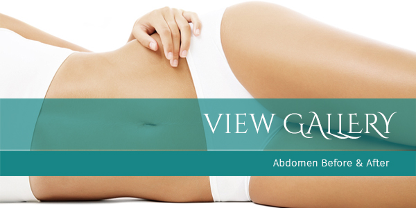 "Abdominoplasty, or ""Tummy Tuck"