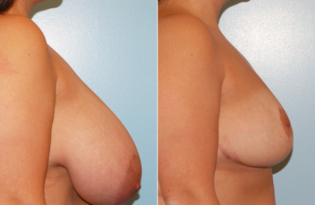 breast-reduction*