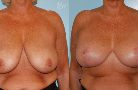 Web-Breast-Aug-Lift-1-6