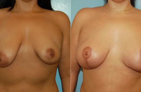 Web-Breast-Aug-Lift-2-1