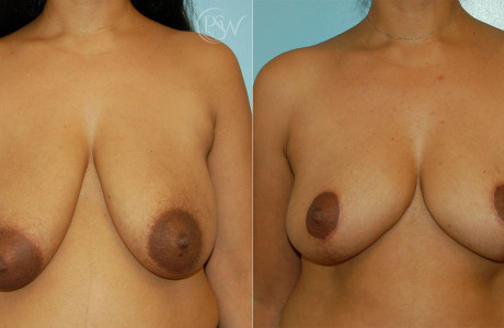 Web-Breast-Lift-1-1