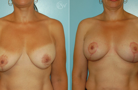 Web-Breast-Lift-2-1