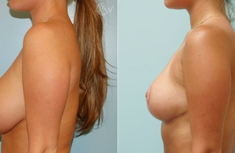 Web-Breast-Reduction-1-1