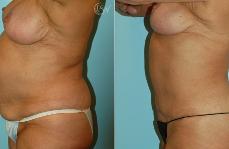 Web-Breastlift-Tummytuck-1-1