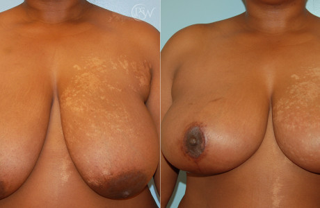 Web-Breast-reduction2-1