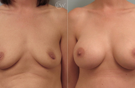 Breast-aug-lift3-5