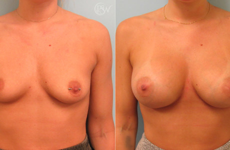 Breast-aug-lift4-5