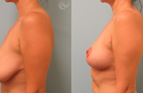 Breast-reduction2-7