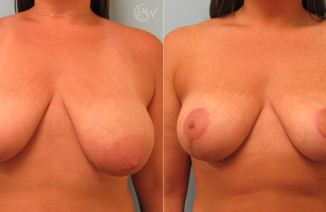 Breast-reduction3-7