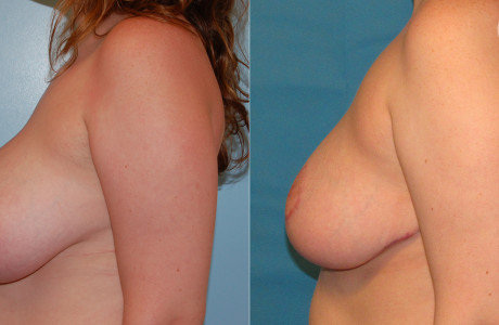 Breast-reduction4-3