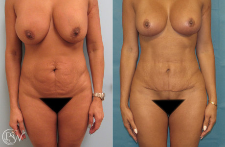 Abdominoplasty-1-3