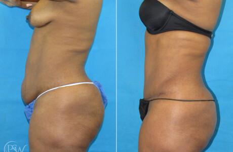 Abdominoplasty2-11-9-20