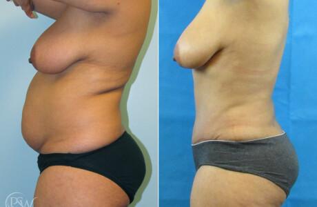 Abdominoplasty4-11-10-20