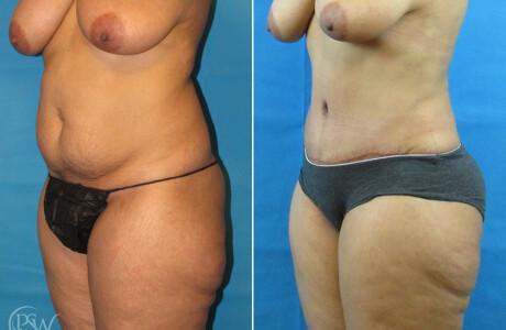 Abdominoplasty-9-21-2