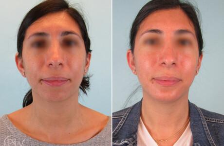 Chin-implant-9-20-2